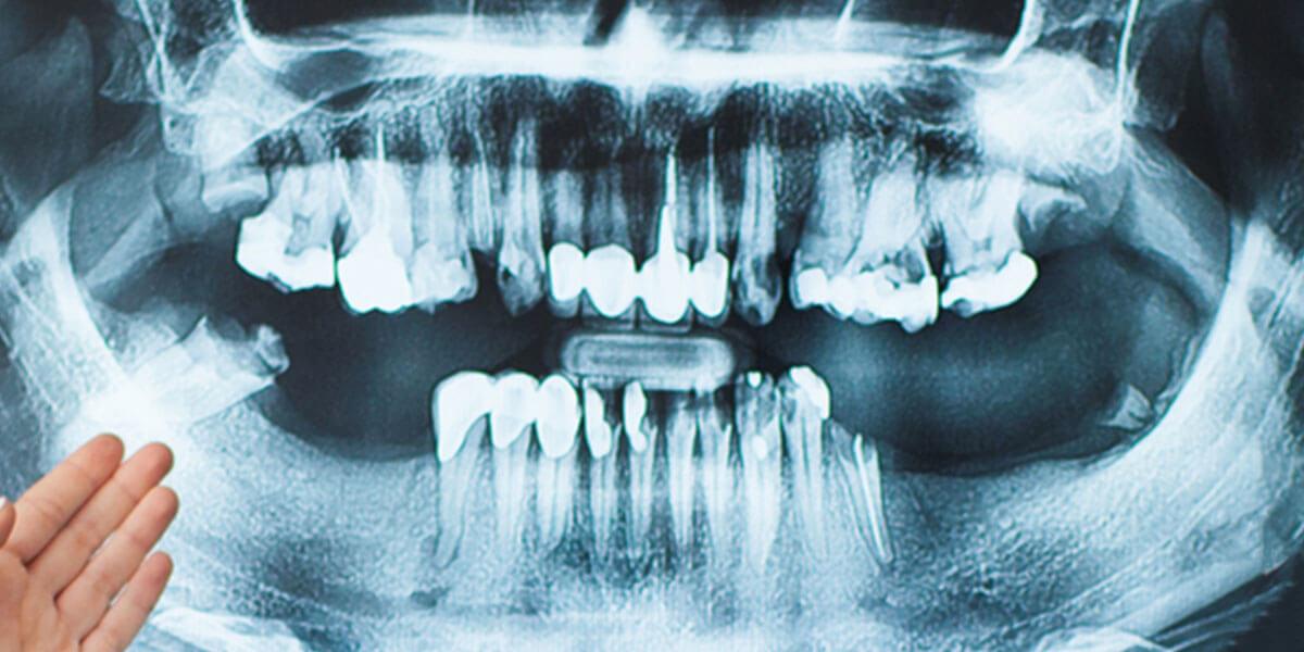 Dental x-rays